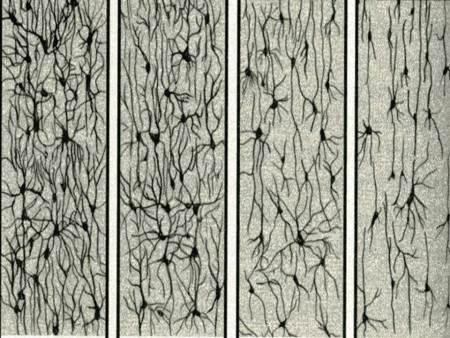 apoptosis-4-panels
