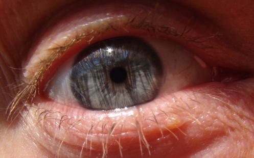 m eye
